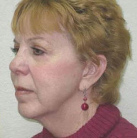 Neck Lift - Patient 1 -  After Image 5
