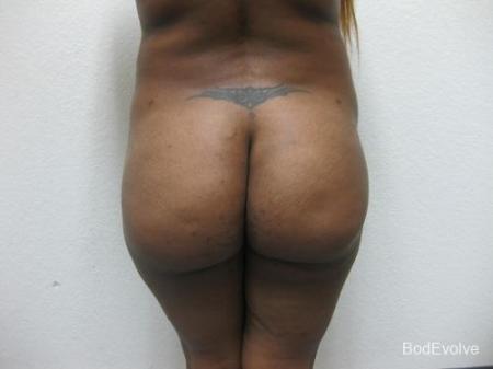 Brazilian Butt Lift - Patient 1 -  After Image 1