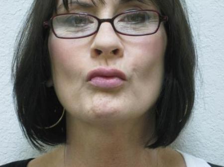 Lip Augmentation - Patient 2 -  After Image 4