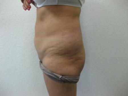 Brazilian Butt Lift - Patient 4 - Before Image 4