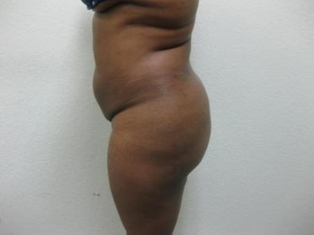 Brazilian Butt Lift - Patient 5 -  After Image 2