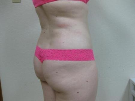 Liposuction - Patient 5 -  After Image 3