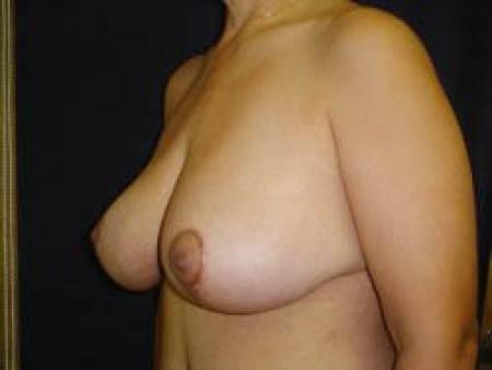 Breast Augmentation with Lift - Patient 9 -  After Image 2