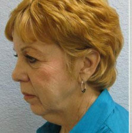 Facelift - Patient 1 - Before Image 2
