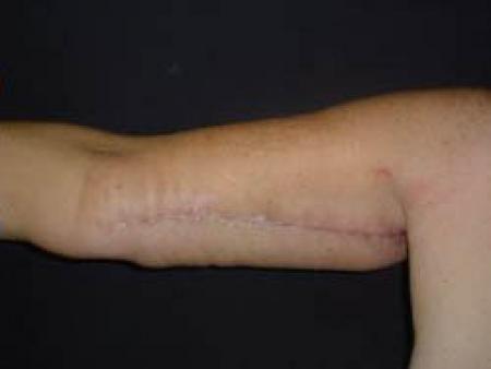 Arm Lift Surgery - Patient 2 -  After Image 2
