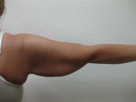 Arm Lift Surgery - Patient 1 - Before Image 4