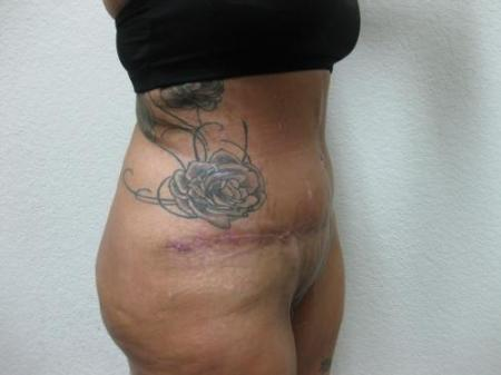 Tummy Tuck - Patient 3 -  After Image 4