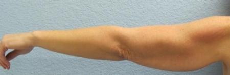 Arm Lift Surgery - Patient 3 - Before Image 3