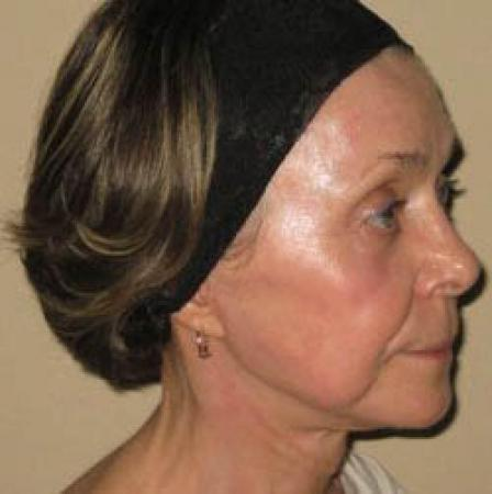 Facelift - Patient 2 -  After Image 2