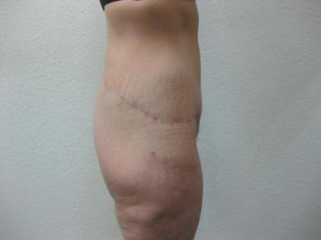 Body Lift - Patient 8 -  After Image 2