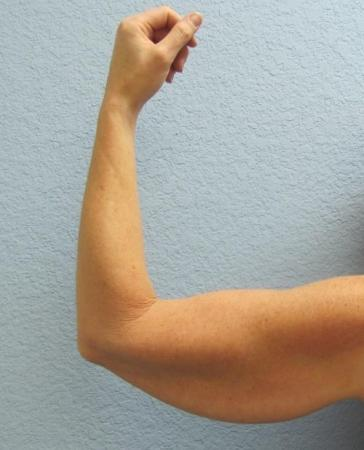 Arm Lift Surgery - Patient 3 - Before Image 6