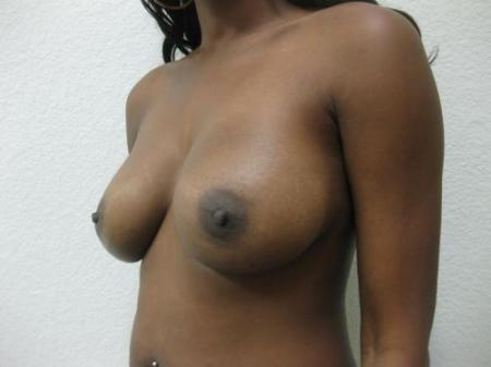 Breast Implant Revision -  After Image 2