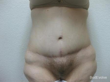 Patient 4 - Cosmetic Surgery After Massive Weight Loss -  After Image 1