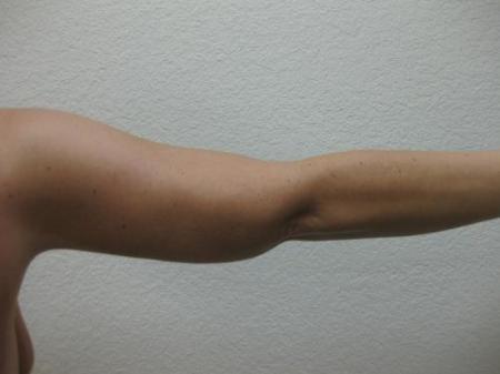 Arm Lift Surgery - Patient 1 -  After Image 2