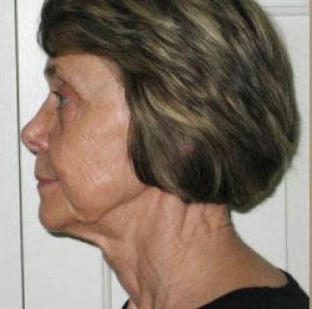 Facelift - Patient 2 - Before Image 1