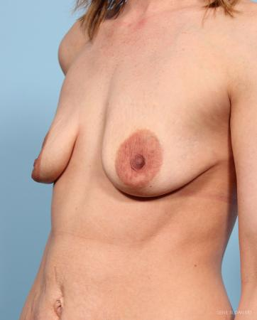 Breast Augmentation With Lift: Patient 1 - Before and After Image 2