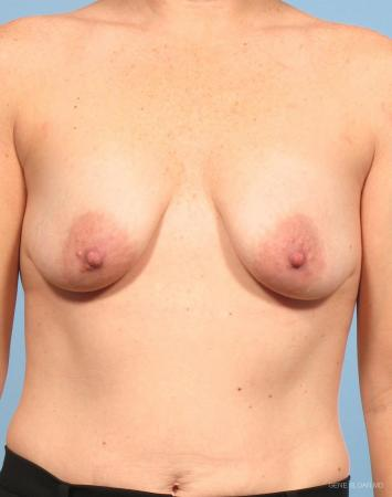 Breast Augmentation With Lift: Patient 6 - Before Image 1