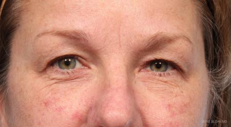 Blepharoplasty: Patient 6 - Before Image