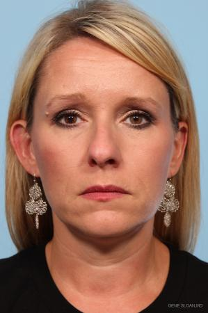 Rhinoplasty: Patient 3 - Before Image