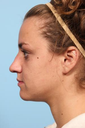 Rhinoplasty: Patient 9 - Before and After Image 2