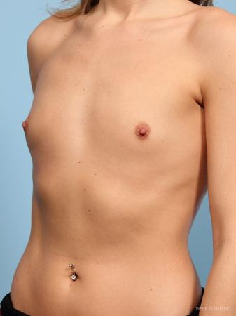 Breast Augmentation: Patient 15 - Before and After Image 2