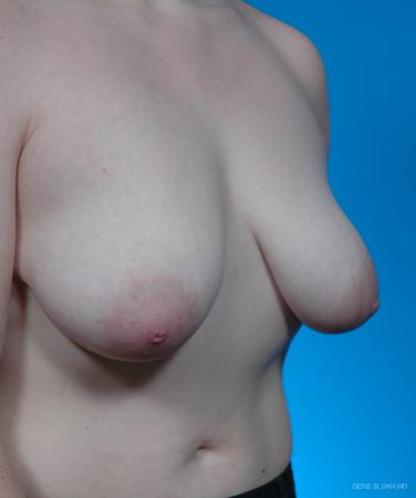 Breast Lift: Patient 3 - Before and After Image 2