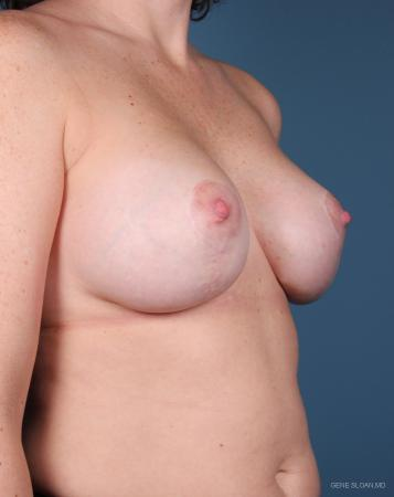 Breast Augmentation With Lift: Patient 6 - After Image 2
