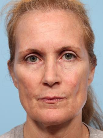 Facelift: Patient 7 - Before Image