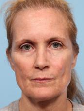 Facelift: Patient 7 - Before Image
