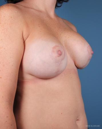 Breast Implant Revised: Patient 5 - Before and After Image 2