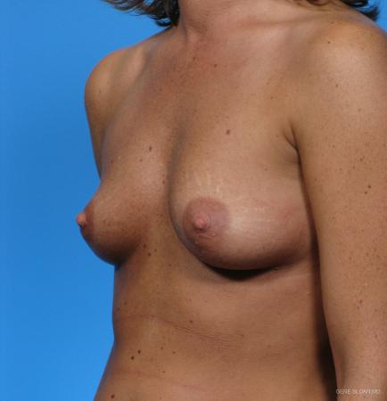 Breast Augmentation: Patient 2 - Before and After Image 2