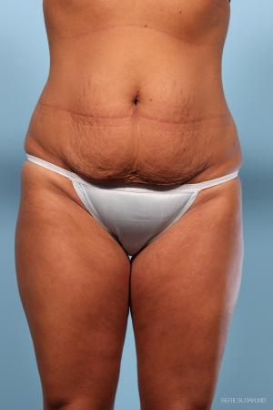 Abdominoplasty: Patient 1 - Before Image
