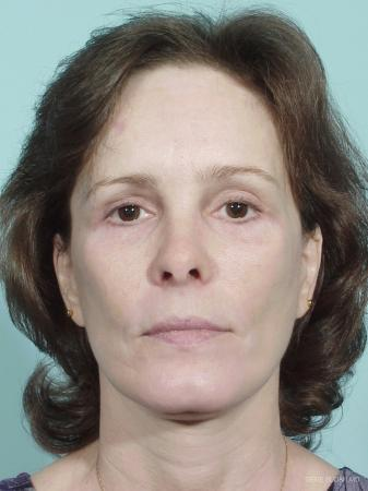 Facelift: Patient 5 - After Image