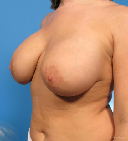 Breast Implant Revised: Patient 1 - Before and After Image 2