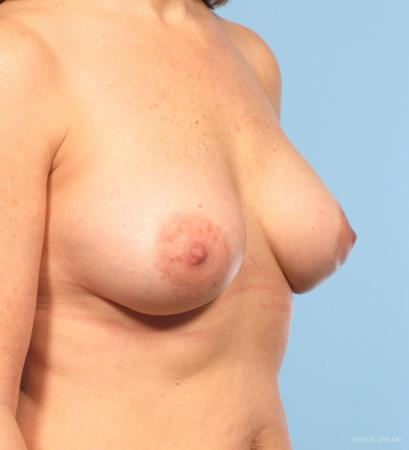 Breast Implant Revised: Patient 2 - After Image 2