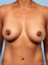 Breast Augmentation: Patient 10 - After Image