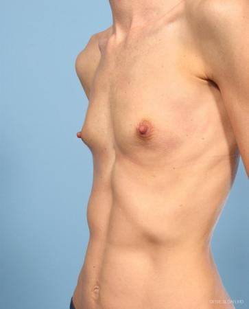 Breast Augmentation: Patient 9 - Before and After Image 2
