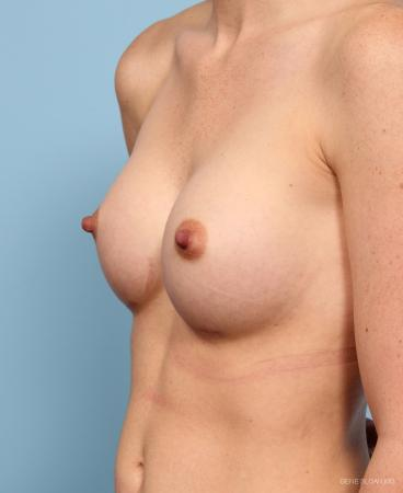 Breast Augmentation: Patient 20 - After Image 2