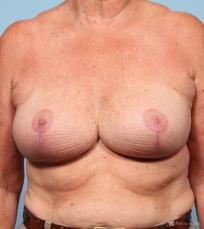 Breast Reduction: Patient 1 - After Image