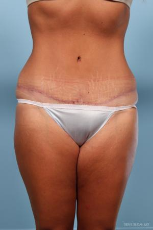 Abdominoplasty: Patient 1 - After Image