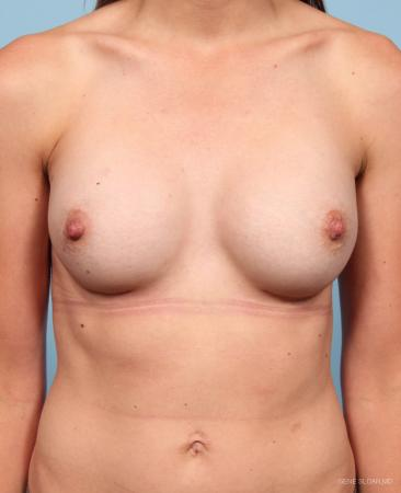 Breast Augmentation: Patient 19 - After Image 1