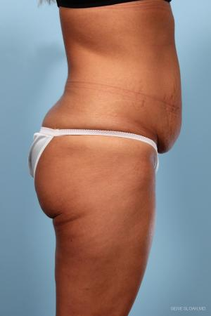 Abdominoplasty: Patient 1 - Before and After Image 2