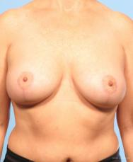 Breast Lift: Patient 4 - After Image