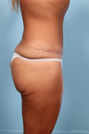Abdominoplasty: Patient 1 - After Image 2