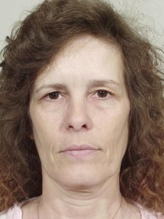 Facelift: Patient 5 - Before Image