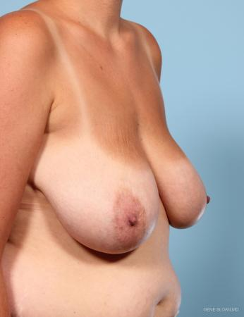 Breast Reduction: Patient 5 - Before and After Image 2