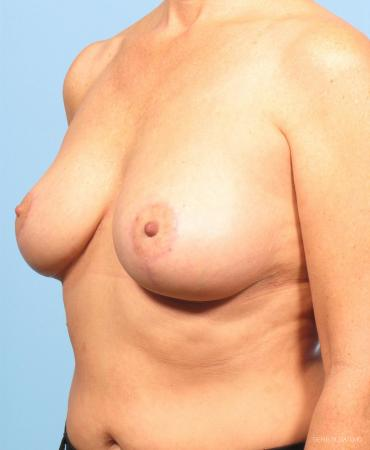 Breast Lift: Patient 4 - After Image 2