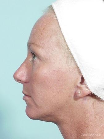 Facelift: Patient 4 - After Image 2