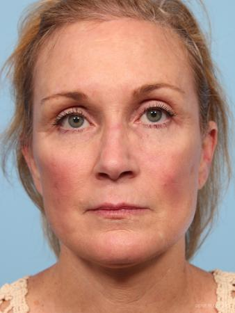 Facelift: Patient 7 - After Image