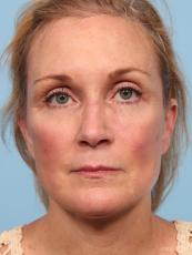 Facelift: Patient 7 - After Image